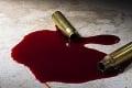 Strašné prekvapenie na Ukrajine: Zákonodarcu našli zastreleného na toalete