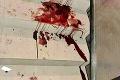 Udobrovanie dvoch rodín pri Košiciach skončilo katastrofou: Namiesto zmierenia krvavá bitka na svadobnej hostine!