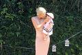 Kráska si dala zväčšiť prsia, trpko to oľutovala: Otrasné, čo s jej telom spravili silikóny