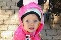 Milotka (2) z Levíc má kruté ochorenie a musí žiť shelmou na hlavičke: S mamou majú 236 € na mesiac