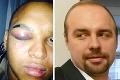 Kotlebov poslanec obvinený po brutálnej bitke: Andrej vysvetľuje, čo spravil!
