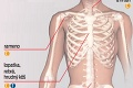 Sarkóm kostí je zriedkavým typom rakoviny: Aké sú príznaky?