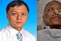 Nečakaný následok liečby dvoch lekárov: Koronavírus ich zmenil na černochov
