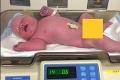 Senzácia po pôrode! Pohľad na novorodenca zaskočil aj lekárov: Takéto bábätko ste ešte nevideli