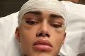 Muž chcel vyzerať ako instagramový filter: Za prerábku tváre vysolil pekný balík! Drsné reakcie ľudí