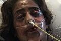 Mladá žena dostala ťažkú alergiu na antidepresíva: Choroba ju zohavila tak, že ju ani nespoznáte!