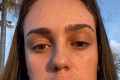 Sofia si dala odstrániť dvojitú bradu, z výsledku dostala jej sestra záchvat: Šialené, čo sa stalo s krásnou tínedžerkou!