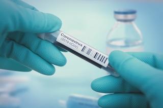 Detail of coronavirus test sample