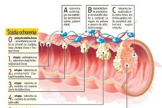 Štádiá ochorenia