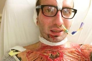 Matt čelil pomalému a bolestivému procesu hojenia popri mučivej regenerácii poškodených nervov.