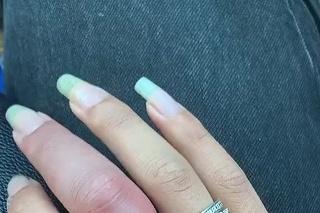 opuchnutý prst a odstraňovanie prsteňa z neho
