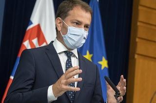 Minister financií SR Igor Matovič