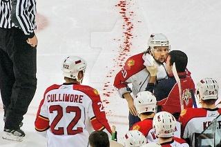Jazva ako spomienku na najhororovejšie zranenie NHL má Zedník stále na krku.