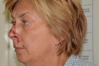 Ženu našli na brehu s menšími zraneniami.