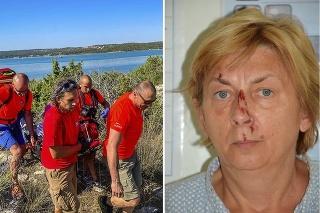 Ostáva záhadou, ako sa ocitla na odľahlej pláži a čo alebo kto spôsobil jej zranenia...