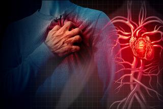 Vysoký cholesterol upcháva cievy viac ako tretine Slovákov