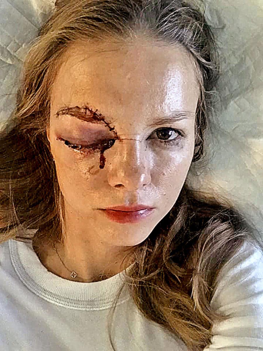 Barbora Žiačiková po zásahu