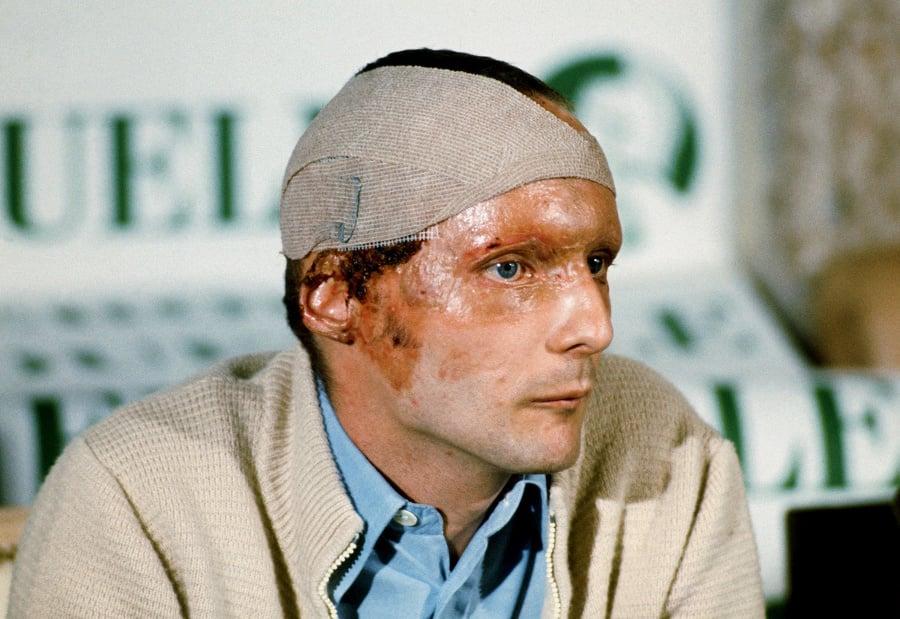 September 1976: Niki na