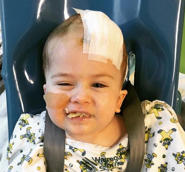 Alfie podľahol rakovine mozgu
