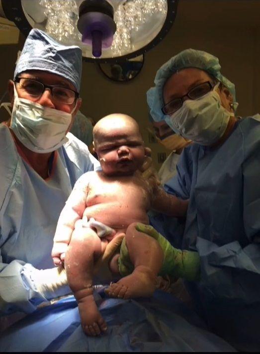 Chlapec mal pri pôrode