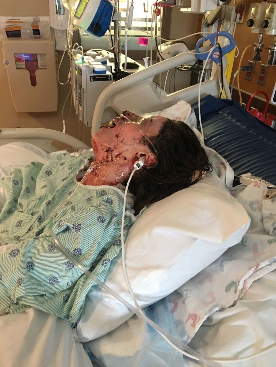 Diagnostikovali jej toxickú epidermálnu