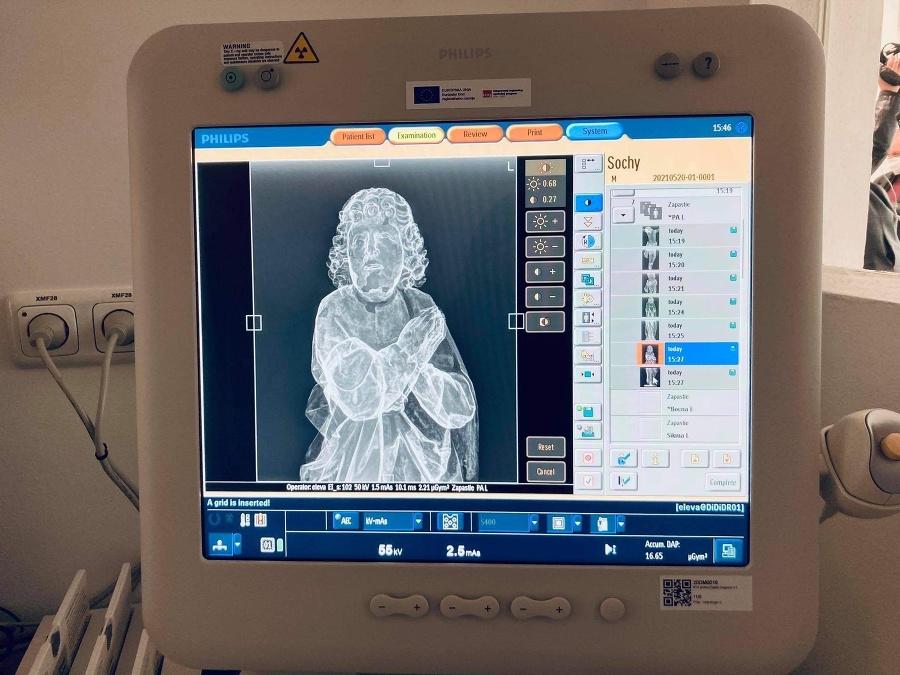 Rádiodiagnostické oddelenie prvýkrát v nových priestoroch so špičkovou technikou pomáha k objavovaniu histórie.