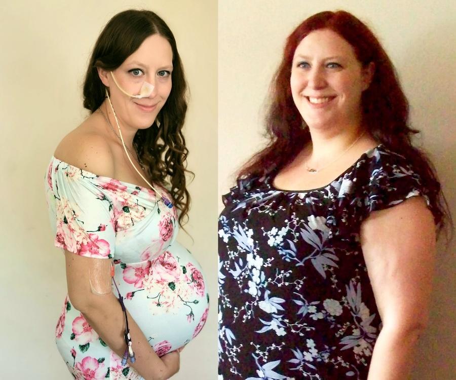 Mamička schudla počas tehotenstva