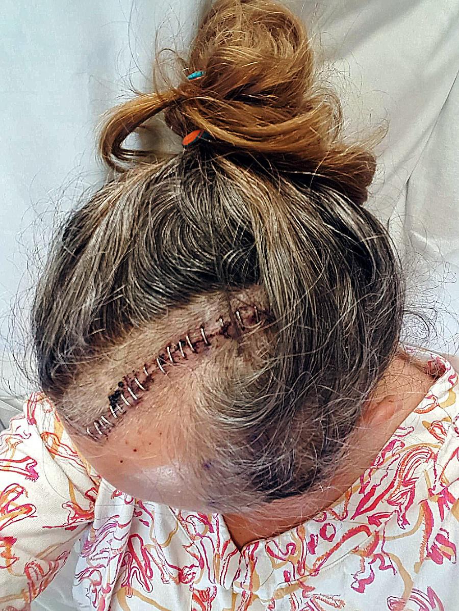 Pred tromi rokmi odstránili Jane (57) nádor z mozgu.