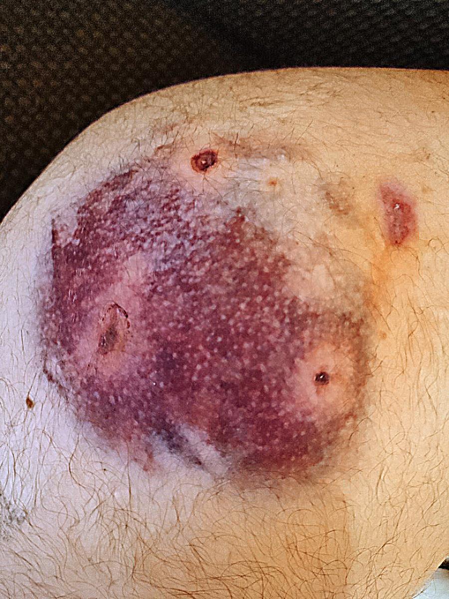 Michala agresívna medvedica labou buchla do zadnej časti tela.