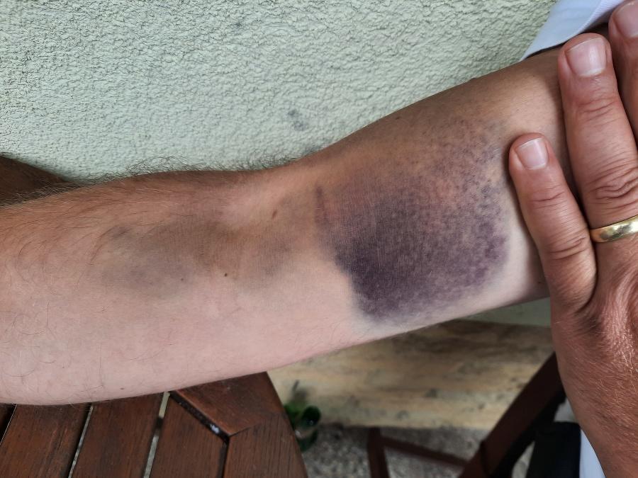 Petrove zranenia po incidente.
