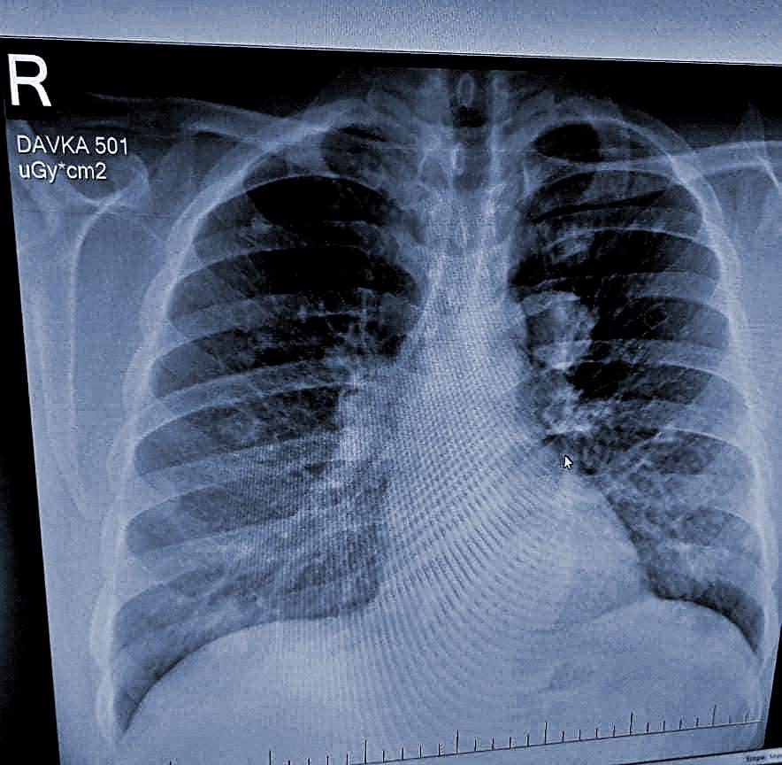 Röntgenová snímka zobrazujúca Jánove metastázy na pľúcach.