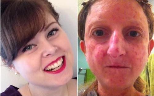 Dve ženy trpiace sklerodermiou,