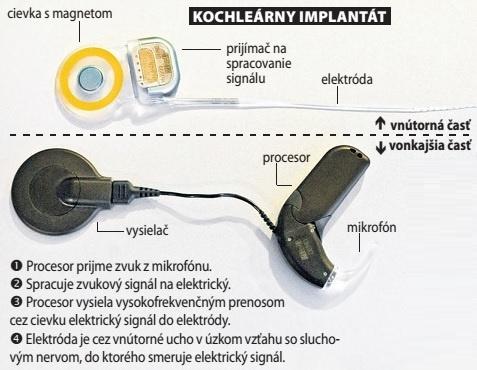Kochleárny implantát