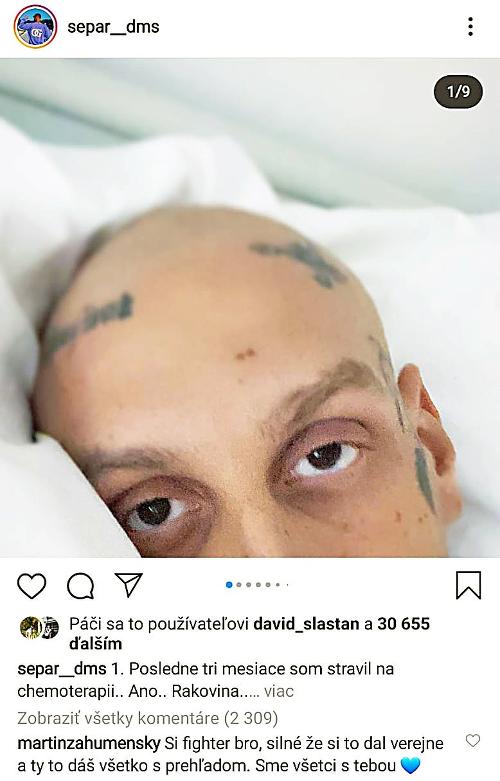 Umelec podstúpil náročné chemoterapie.