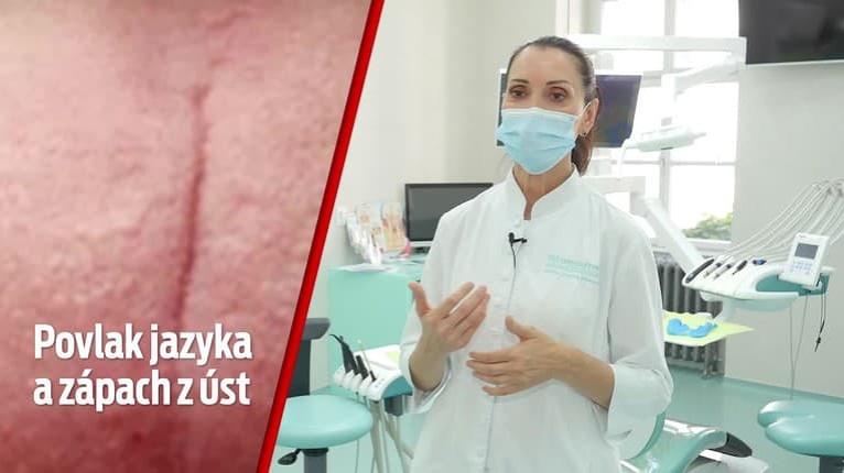 Zabúdate pri pravidelnej dentálnej hygiene na jazyk? Zarábate si na poriadny problém