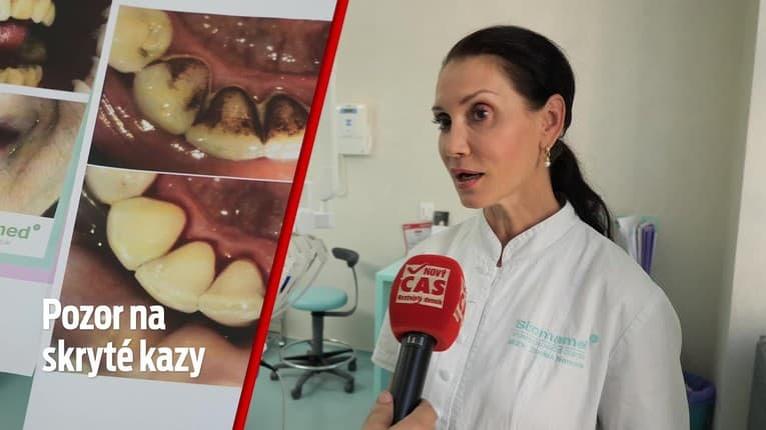 Chodíte pravidelne k zubárovi? Na toto si dajte pozor, skrytý zubný kaz totiž odhalí iba jedna vec!